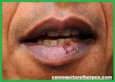 herpes labiale interno como eliminar el herpes tratamiento