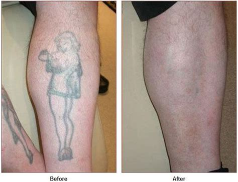 can tattoos be fully removed 28 can tattoos be completely removed laser