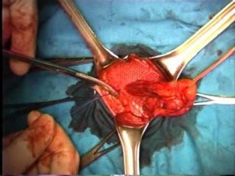 ernia ombelicale interna ernia inguinale trattamento chirurgico