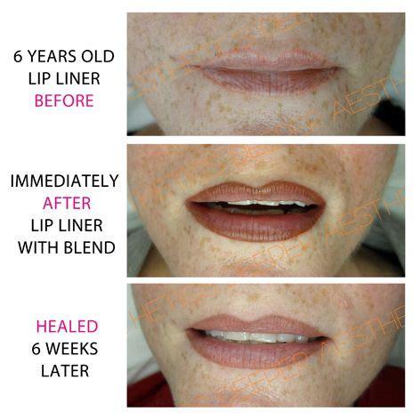 Lip Liner Tattoo Birmingham | semi permanent lip liner with colour blend www