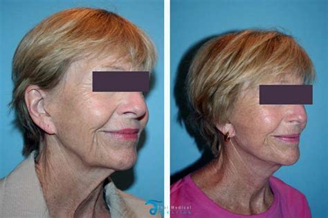 Passes Out In Bathroom Requires Plastic Surgery by Neck Lift In Bangkok Platysmaplasty Cervicoplasty