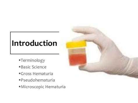 Evaluation of the patient with hematuria.