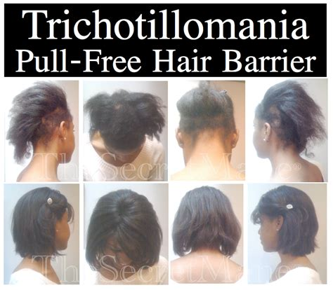 Hair Style For Trichotillomania | trichotillomania before and after pictures