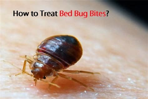 how to cure bed bug bites how to treat bed bug bites