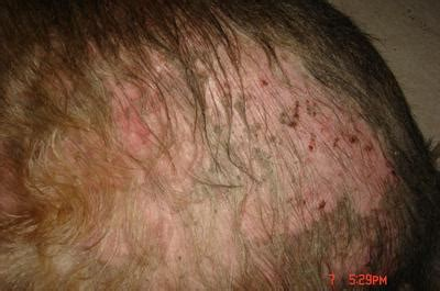 pimples on dogs back bald patches on dogs pictures to pin on pinsdaddy