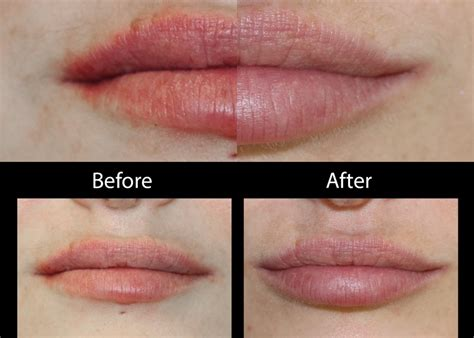 lip fillers quotes