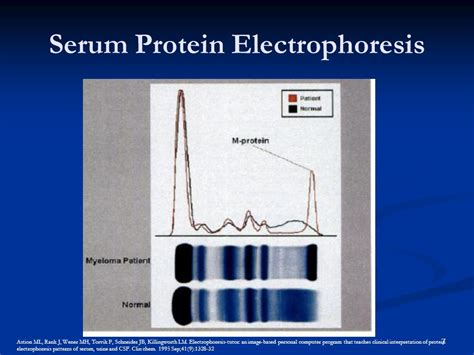 protein electrophoresis serum tuesday conference ppt