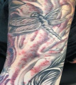 bacterial infection on tattoo urmc treats researches record 19 bacterial tattoo