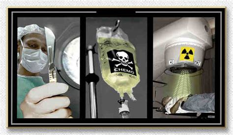 How To Detox Your After Chemo And Radiation by Understanding The Witches Brew Surgery Radiation And