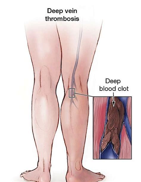 vein thrombosis treatment at home varicose vein home