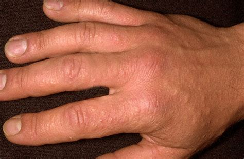 sun poisoning from tanning bed sun poisoning pictures symptoms causes treatment
