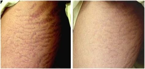 derma roller before and after pictures stretch marks