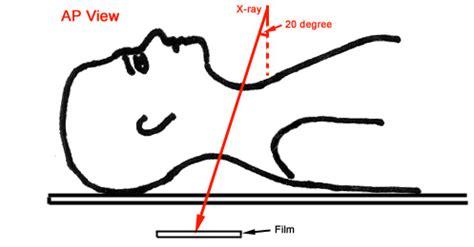 imaging   cervical spine
