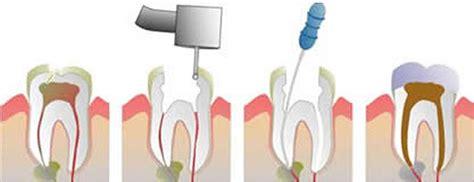comfort dental root canal cost endodontics studio dentaire