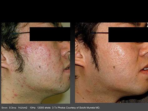 cutera laser genesis treatment laser genesis kamloops bc skin
