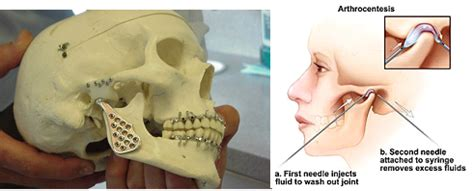 try jaw questions to ask before you have tmj surgery oasis dental