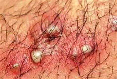 how to remove engrown hair onunderwear line definition of ingrown hair the best hair of 2017
