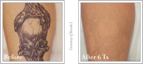 tattoo removal offers leeds colorado skin care november december specials colorado