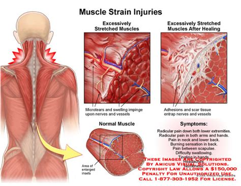 can scar tissue from c section cause pain amicus illustration of amicus injury muscle strain
