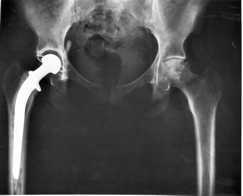 hip replacement complications of hip replacement healthhype