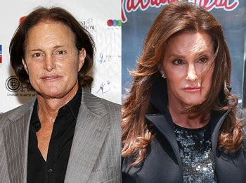 did bruce jenner have hair plugs did bruce jenner have hair plugs did caitlyn jenner have a