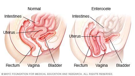 opening bowels after c section small bowel prolapse enterocele mayo clinic
