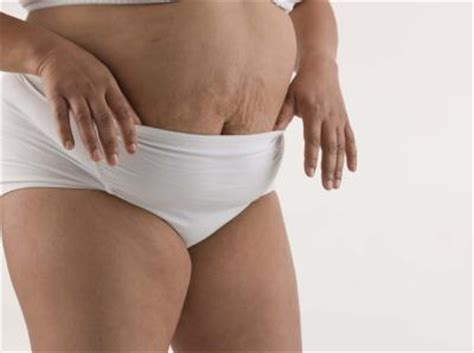 tummy pooch after c section health tips how to get rid of belly fat