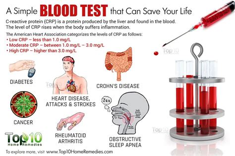 protein level in blood a simple blood test that can save your top 10 home