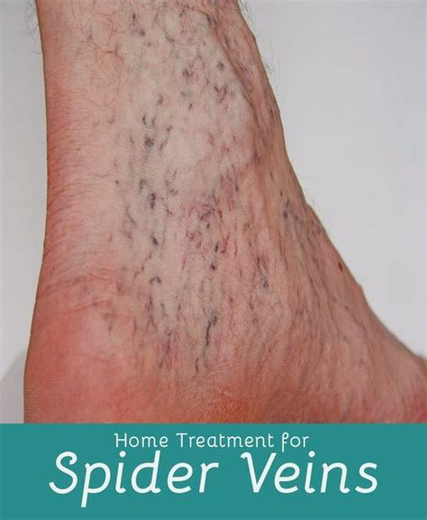 home treatment for spider veins home and spider