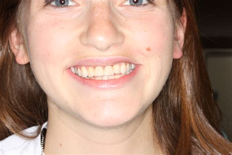 Image Smile Cosmetic Dentistry Makeovers Download