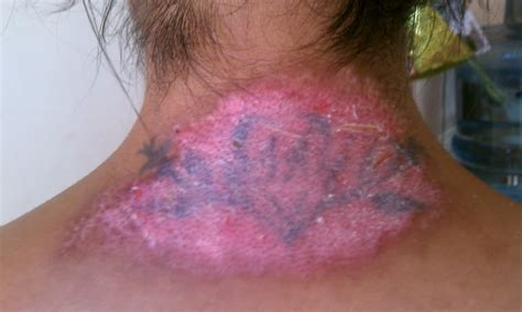 does tattoo removal cream work www pixshark com images