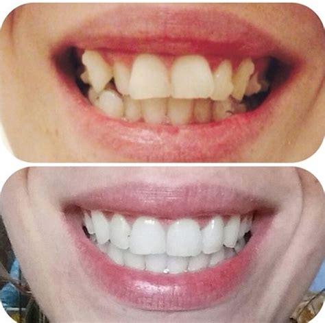 beautiful     teeth whitening