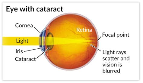 seeing halos around lights in one eye cataracts and how they can effect activities and lifestyle