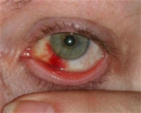 blood in s eye inflamed blood vessels in eye k k club 2017