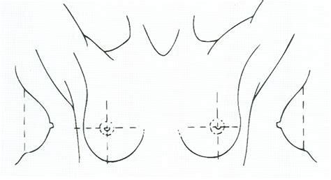 breast diagram drawing breast mastalgia assessing breast