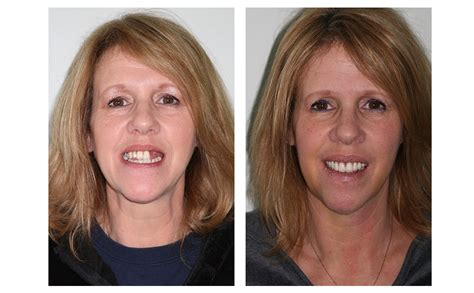 Next Facelift For Your Teeth 2 by And Partial Dentures Makeover Dr Terry Shapiro