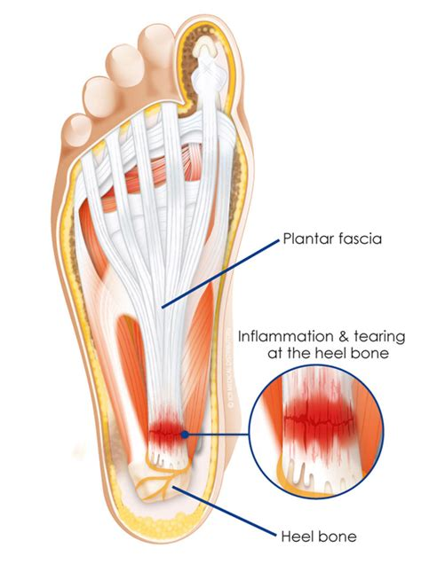 how to treat planters fasciitis plantar fasciitis heel spur and how to treat it
