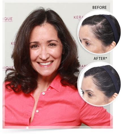 keranique before and after photos keranique reviews does keranique work to regrow hair
