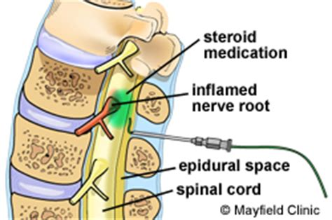 back pain after c section epidural epidural steroid injection esi spine injections steroid