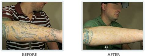large tattoo removal before and after how it works portland removal treatment portland