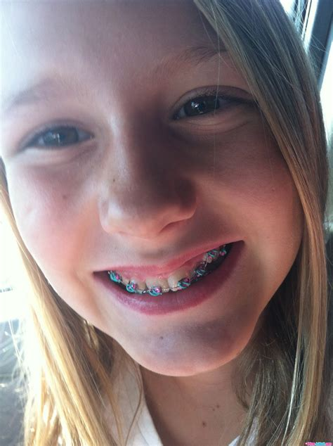 young teen girl face with braces pic 1380889 primejailbait