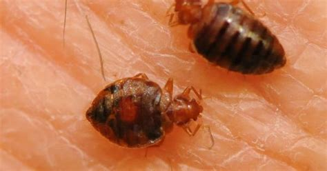 can you get sick from bed bug bites http www