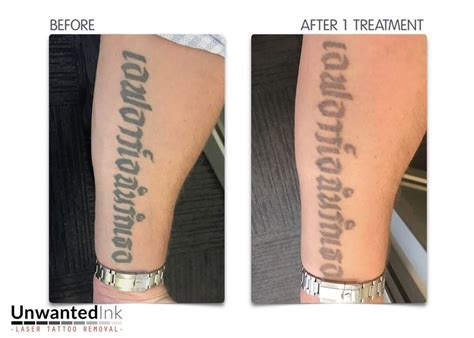 best tattoo removal sydney 104 best laser removal sydney ink