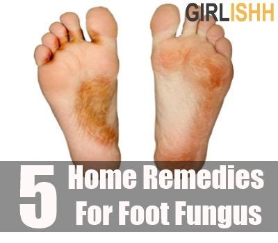 home remedies for foot fungus top 5 home remedies for foot fungus health care