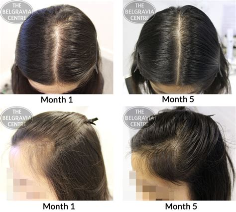 female pattern hair loss natural remedies success story alert new female hair loss treatment entry