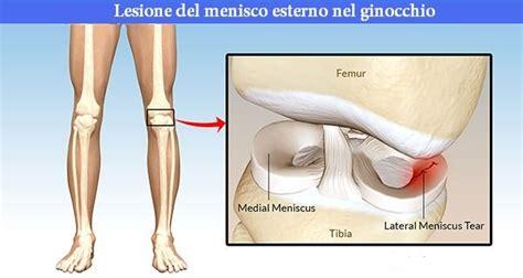 dolore al ginocchio laterale interno dolore al ginocchio laterale le cause e la soluzione