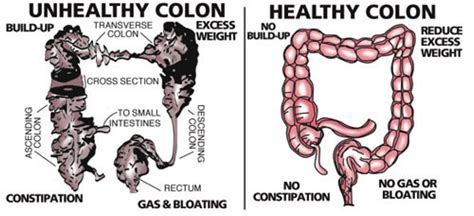 How To Detox Your Intestines And Colon by The Colon It S Not Glamorous Heal The Gut
