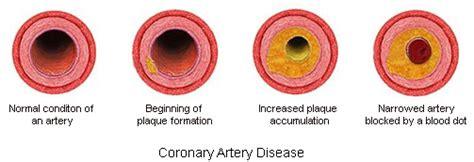 Can You Cure Chd disease coronary artery disease montgomery