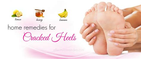top 20 home remedies for cracked heels in winter