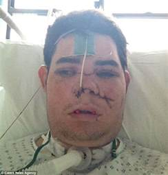Blind Side Car Accident A Car Crash Broke My Face In Half Man 22 Is Left With